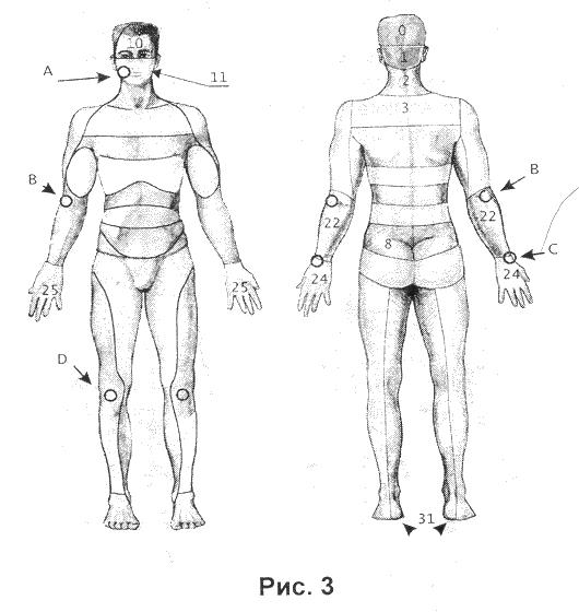 При любой...  Головные боли, невралгия тройничного и неврит лицевого нервов, лицевые симпаталгии, нарушения слуха...